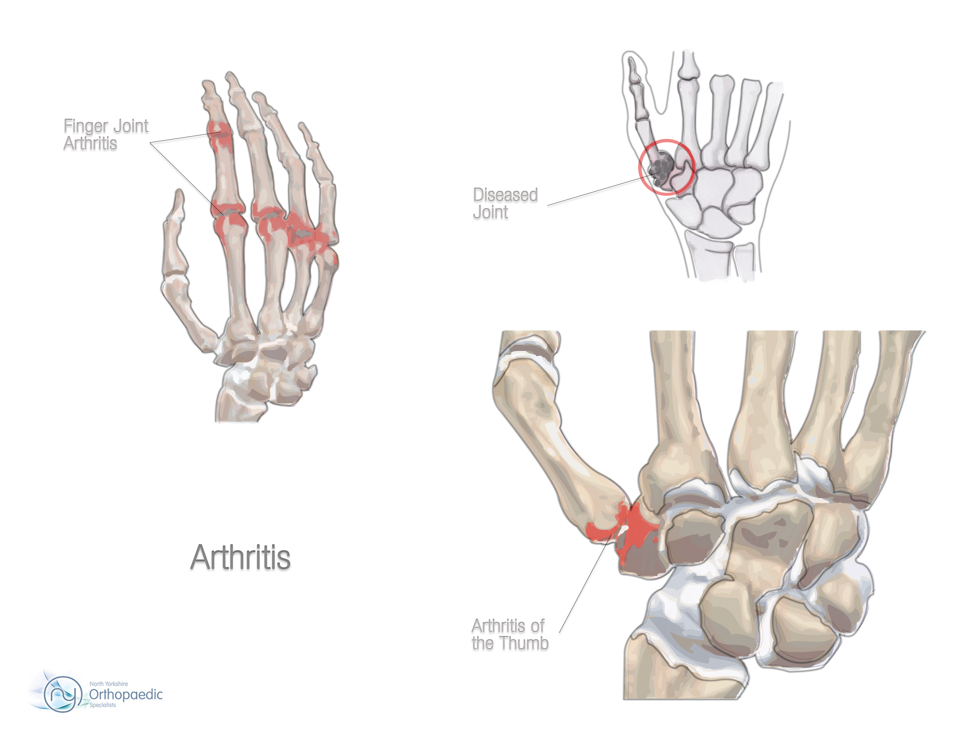 Basal Joint Arthritis Specialist Dallas Tx
