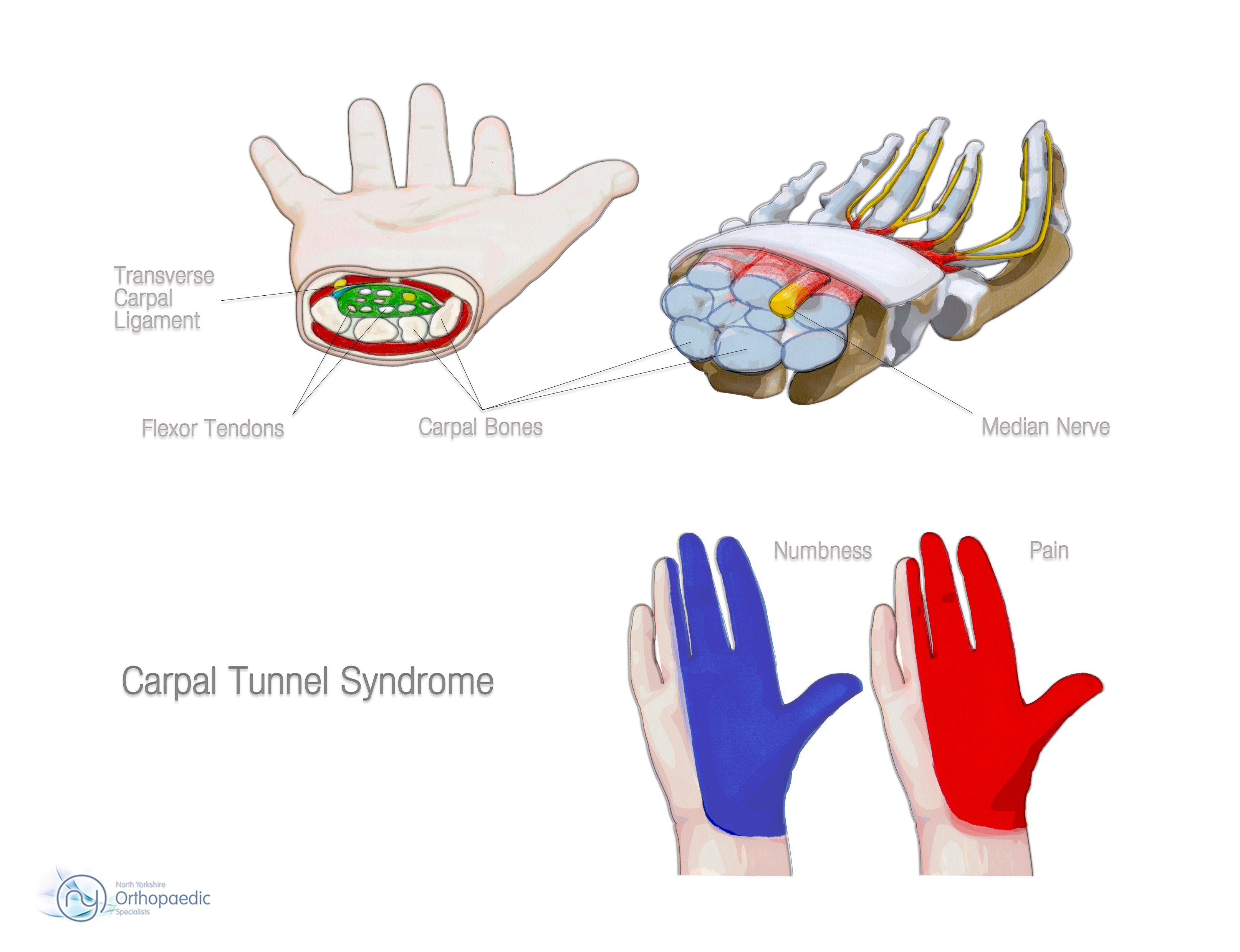 Carpal Tunnel Syndrome | Orthopaedic - Ian Whitaker